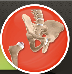 Anterior Hip Replacement Dallas